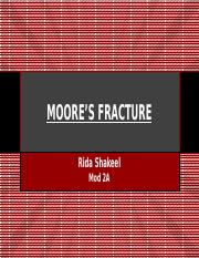 Moore's Fracture
