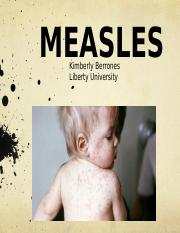 MEASLES- ppt. 503.pptx