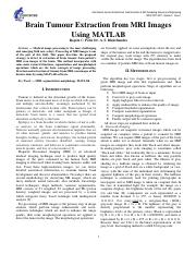 Brain-Tumour-Extraction-from-MRI-Images-Using-MATLAB docx