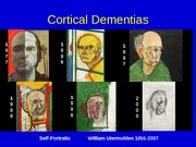 Lecture 8 - Coritcal Dementias