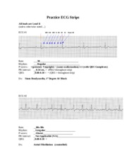 ECG Practice Strips ANSWERS 2011