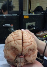 Key to 3 and 4 part plastic Human Brain Model