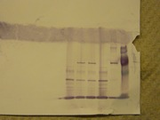 Western Blot Image about lacZ expression for lab report all classes will use same image