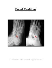 Tarsal Coalition report  psych.docx