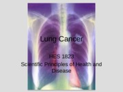 Lung+Cancer+(Lecture+6)