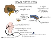 Bowel Obstruction mnemonic notes