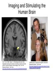 Imaging and Stimulating the Human Brain.pd.pdf