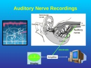 22_Auditory_Nerve_Function