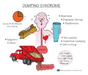 Dumping Syndrome mnemonic notes