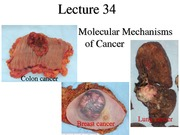 Lecture_34_Genetics _of_Cancer-I(1)