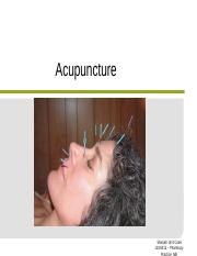 CAM Acupuncture.ppt