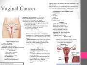 Biology 102 Vaginal Cancer Powerpoint Flyer