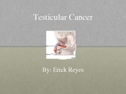 Testicular Cancer slideshow