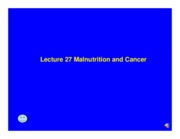 Lecture_27_Diet_and_Cancer_added_voice