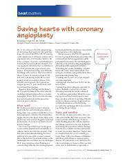 Saving hearts with coronary angioplasty