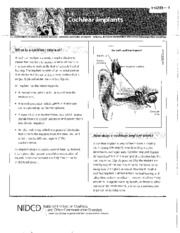 H28 - Cochlear Implant Fact Sheet