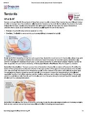 Tendonitis Guide Causes, Symptoms and Treatment Options.pdf