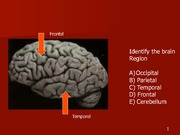 Lecture_6_-_Neuropsychology_Part_2