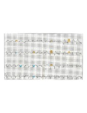 800px-12_Lead_EKG_ST_Elevation_tracing_color_coded