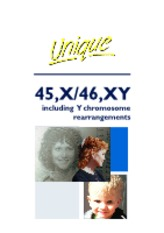 45X 46XY including Y chromosome rearrangements FTNW