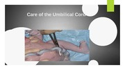 Care of the Umbilical Cord power point