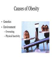 3 Causes of Obesity
