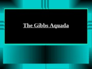 The Gibbs Aquada