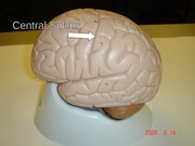 ANAT 2646 Lateral Brain Sulcus