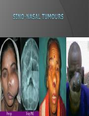 nose PNS TUMOUR MNG - Copy.ppt