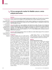 The Simultaneous Use ofTelomerase  Cytokeratin 20 and CD4 for Bladder Cancer Detection in Urine