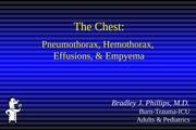 The_Chest_ptx_