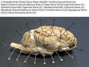 Sheep Brain Dissection