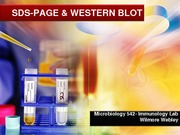 Lecture_SDS-PAGE  WESTERN BLOT_2014