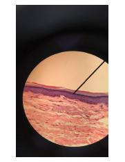 stratified squamous.jpg