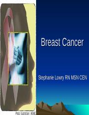 Breast Cancer student version-1.ppt