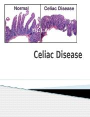 Celiac Disease.pptx