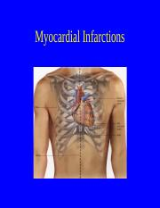 4809- Myocardial Infarctions 2014-1.ppt