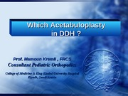 Which Acetabuloplasty in DDH
