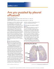 Are you puzzled by pleural effusion