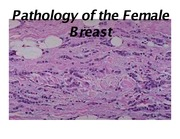 Exam 2 - Breast