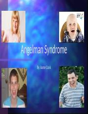 Angelman Syndrome.pptx