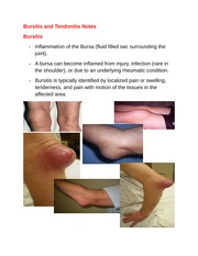 Bursitis and Tendonitis Notes