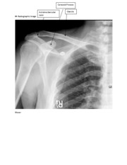 Annotated Radiographic Image