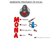 Immediate Treatment Of Myocardial Infarction