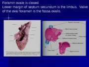 Lecture9help__Foetal-Circulation