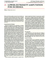 19 Lower-extremity amputation for ischemia