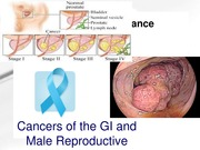 cancer of GI and male notes