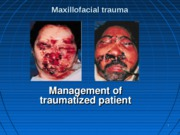 Management of maxillofacial trauma