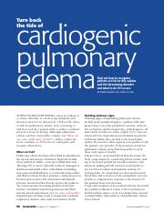 Turn back the tide of cardiogenic pulmonary edema.pdf