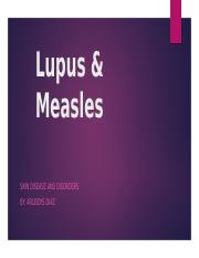 Lupus & Measles